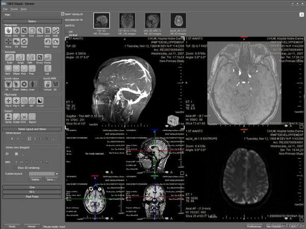 Vorschau ORS Visual Lite - Bild 1