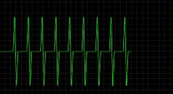 Vorschau EKG - Bild 1